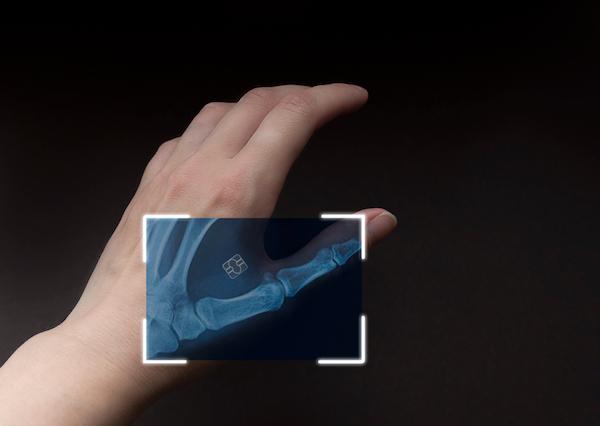 Bu Marka Evde Vücudunuza Yerleştirebileceğiniz Mikroçipler Satıyor